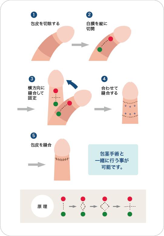 屈曲・湾曲ペニスの手術方法の図解